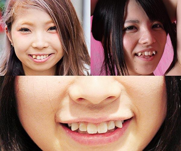 yaeba-dente-sporgente-giapponese